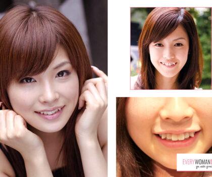 Ιαπωνία: Το διπλό δόντι